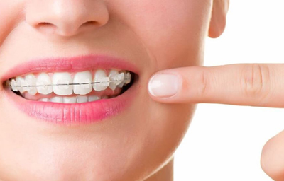 5 Things to Know Before Getting Braces in 2020 | Pasadena, CA