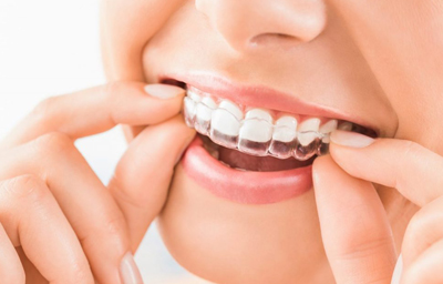 Can Invisalign Treatment Close Gaps? | Pasadena CA