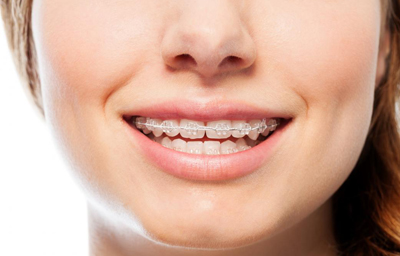 How Long Does Orthodontic Treatment Take? | Pasadena, CA
