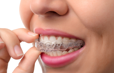 Six Easy Ways To Clean and Take Care of Your Invisalign | Pasadena CA