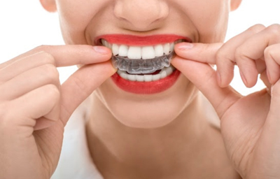 What Problems Can Invisalign Fix?