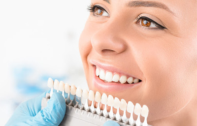 What To Expect After a Teeth Whitening Treatment? | Pasadena, CA