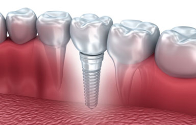 Why Choose a Dental Implant