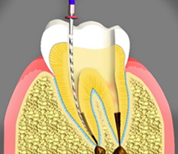 Endodontist/Root Canals in Pasadena, California